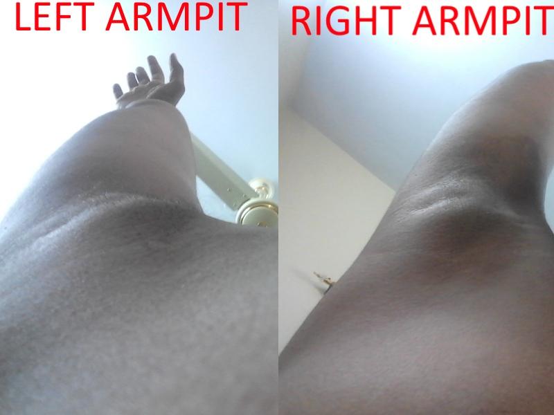 Sore lump under armpit near breast