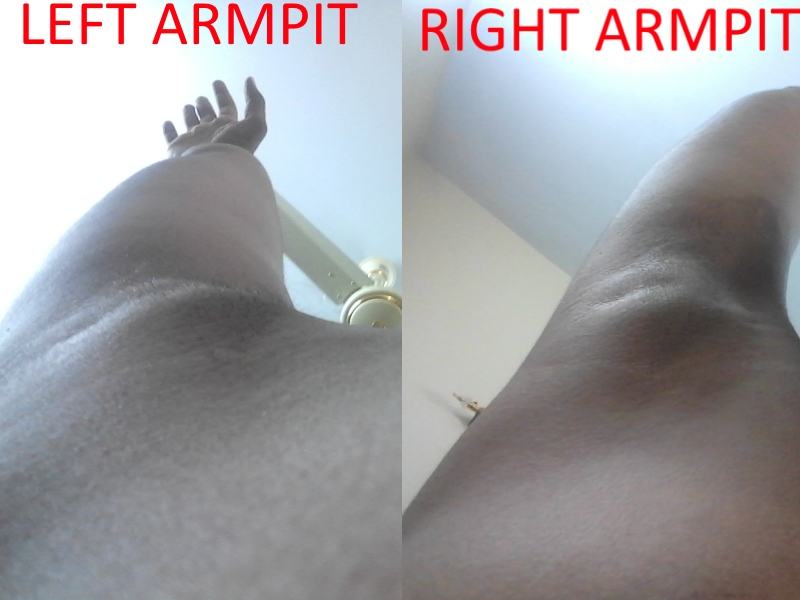 Lump Under My Armpit Breast Cancer Now Forum 1070685