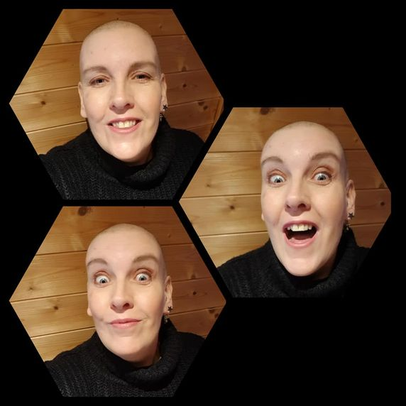 chemo_bald_is_fun.jpg